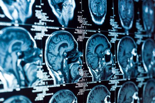 neurologia - siracusatimes